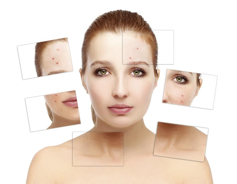 Akne – ungesunder Lebensstil kann die Hautkrankheit begünstigen