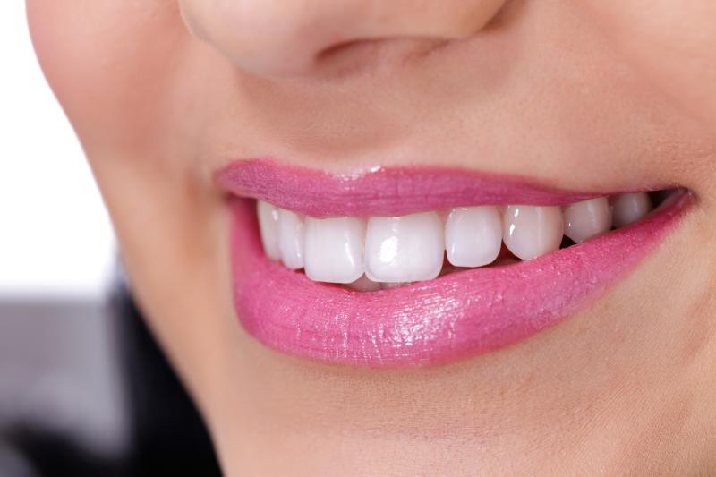 Verblendung: Schöne Zähne durch Veneers