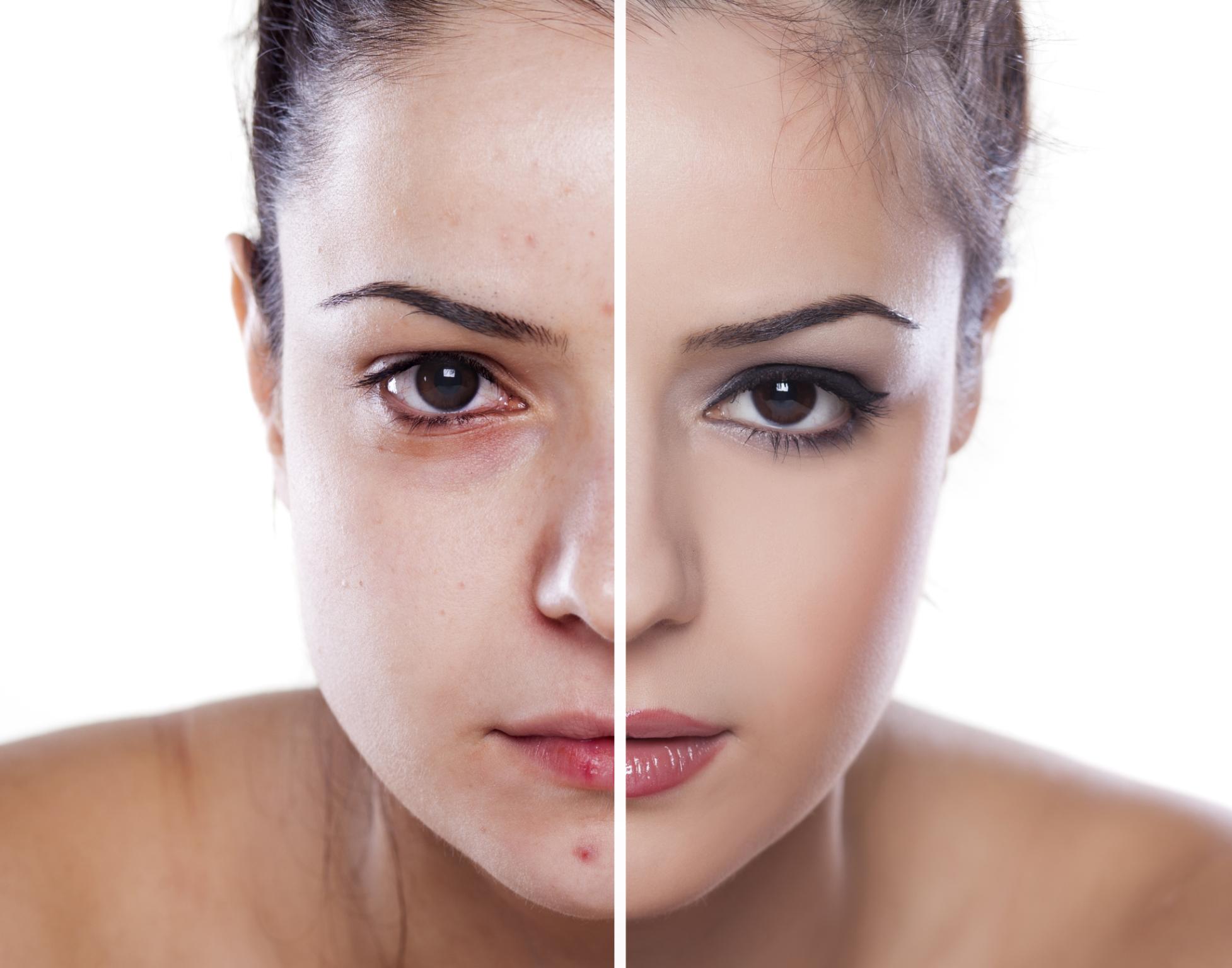 Hautkrankheiten und Schminke – Geht das überhaupt?